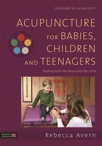 Acupuncture for Babies